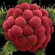 هایپر تره بار | گل توت کاغذی